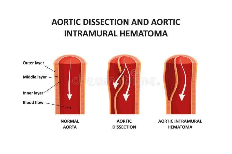 Disección aórtica y hematoma intramuros aórtico ilustración del vector