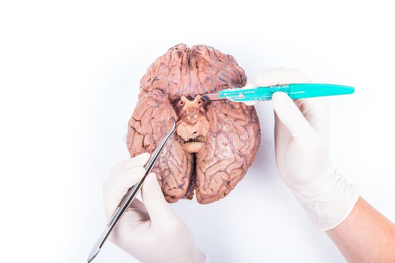 Disección del cerebro humano fotografía de archivo libre de regalías