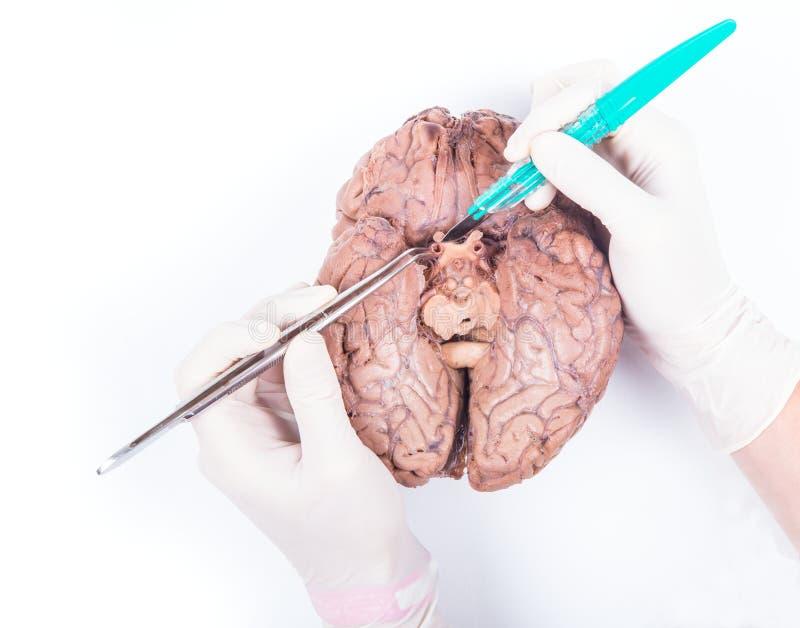 Disección del cerebro humano fotografía de archivo