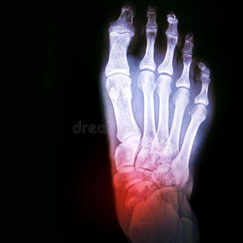 Dislocation of the ankle or arthritis of the joint. X-ray of the foot with the designation of the sore spot stock photos
