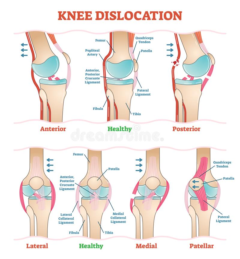 Dislocazioni del ginocchio - diagrammi medici dell'illustrazione di vettore La ferita al ginocchio anatomica scrive lo schema illustrazione di stock