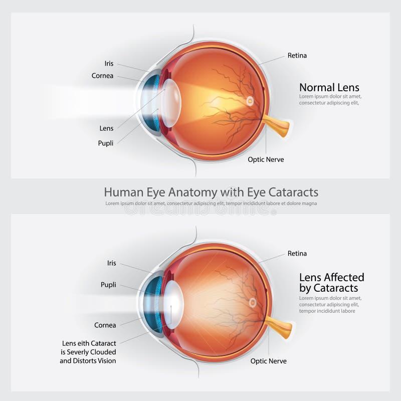 Disordine di visione delle cataratte ed anatomia normale di visione dell'occhio illustrazione di stock