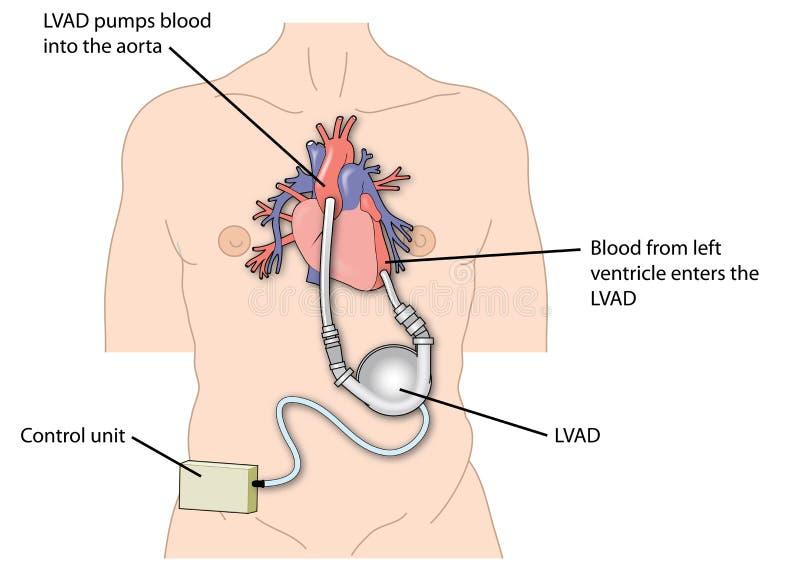 Dispositif d'aide ventriculaire gauche (LVAD) illustration libre de droits