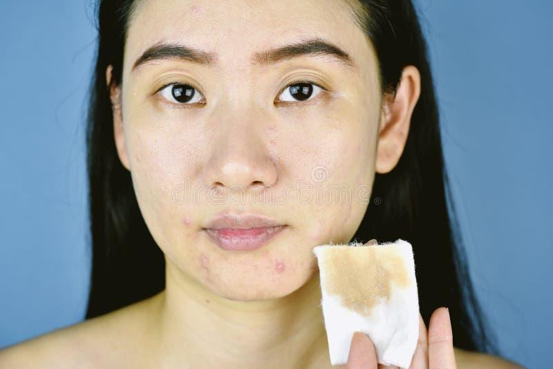 Dispositivo di rimozione cosmetico di trucco, fronte asiatico di pulizia della donna con il cuscinetto di cotone immagine stock libera da diritti