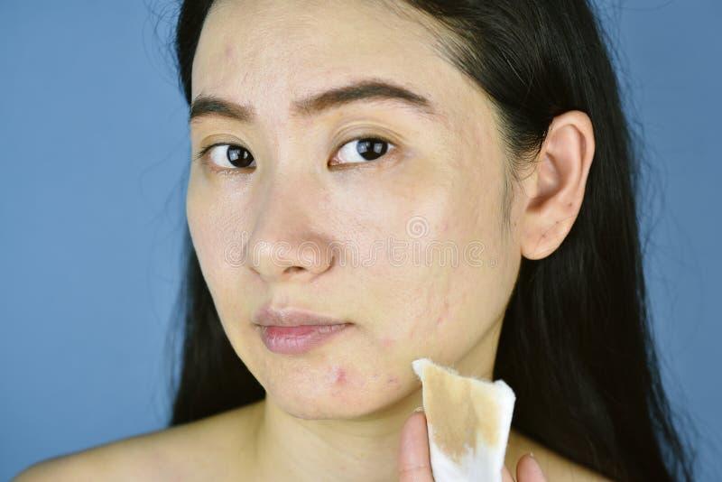 Dispositivo di rimozione cosmetico di trucco, fronte asiatico di pulizia della donna con il cuscinetto di cotone fotografia stock libera da diritti