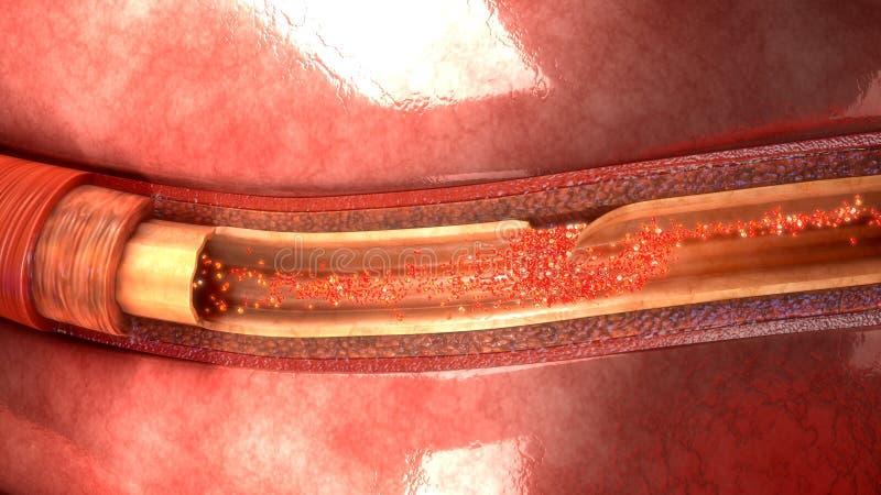 Disseção da artéria foto de stock