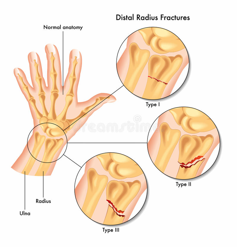 Distal radius fractures stock image. Image of joint, injury - 46631151
