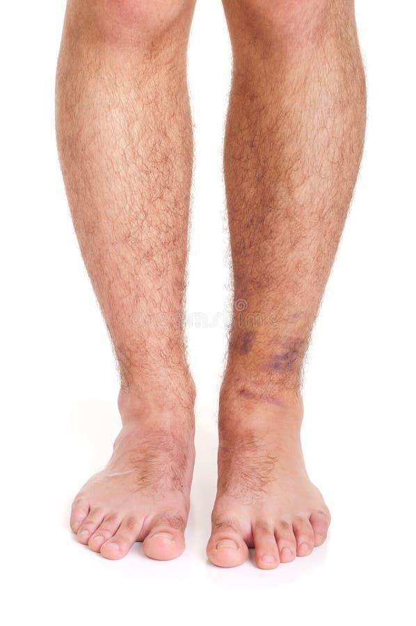 Distorsione della caviglia fotografia stock