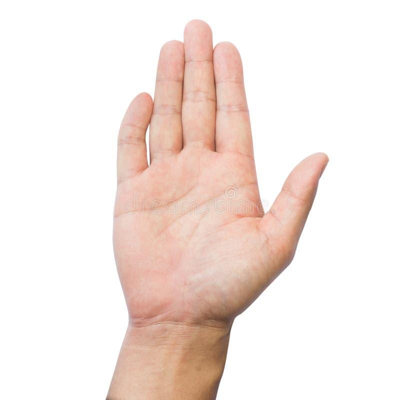 Dita di Clinodactyly isolate sulla quinta malattia isolata bianca di Dupuytren del dito clinodactyly e sulle mani disabili fotografia stock libera da diritti