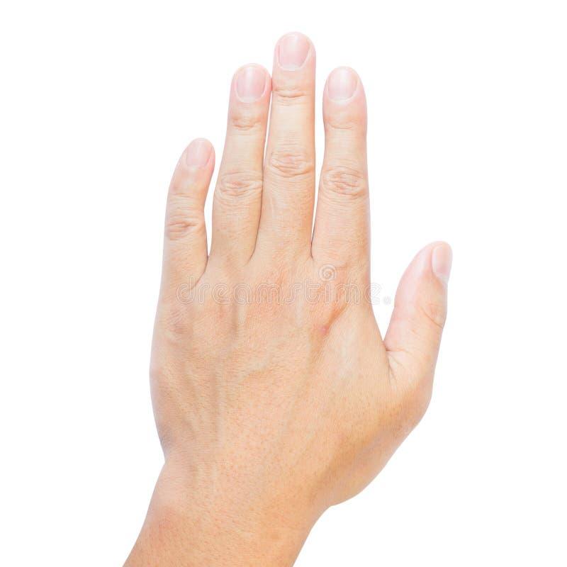 Dita di Clinodactyly isolate sulla quinta malattia isolata bianca di Dupuytren del dito clinodactyly e sulle mani disabili immagini stock libere da diritti