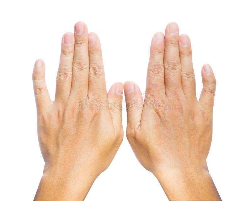 Dita di Clinodactyly isolate sulla quinta malattia isolata bianca di Dupuytren del dito clinodactyly e sulle mani disabili immagine stock libera da diritti