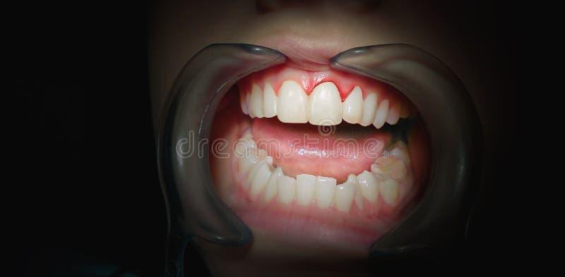 Dites du bout des lèvres avec des gommes de saignement sur un fond foncé photo stock