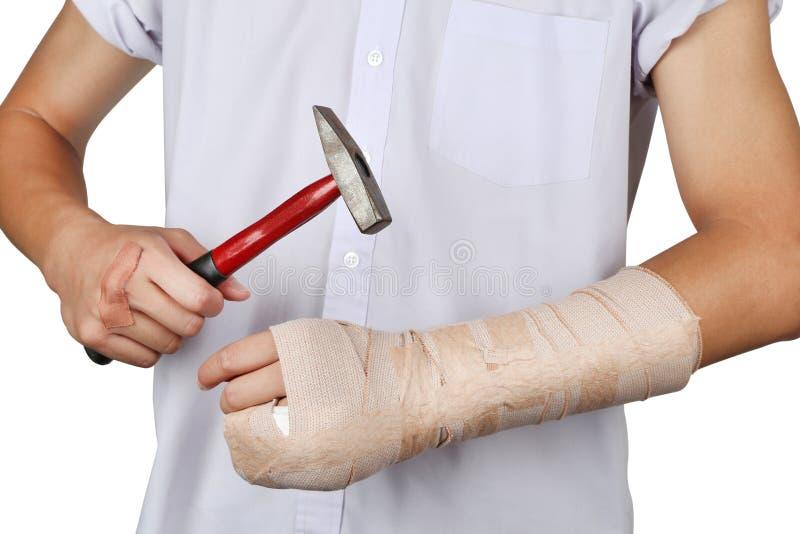Dito e braccio dell'osso tagliati studente da soli con il martello fotografia stock libera da diritti