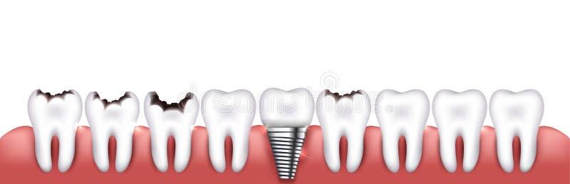 Divers états de dents illustration libre de droits