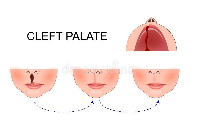 Division palatine dans un enfant Chirurgie plastique reconstruction de illustration de vecteur