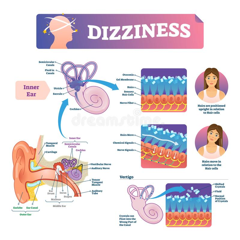 Dizziness vector illustration. Labeled scheme with inner ear and vertigo. royalty free illustration