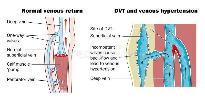 djup blodproppåder stock illustrationer