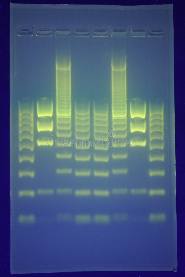 DNA-Trennung stockfotos