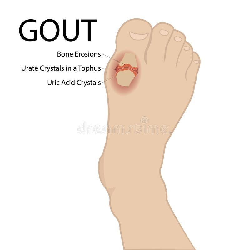 Dnawy artretyzm Ludzka stopa Wektorowa medyczna ilustracja royalty ilustracja