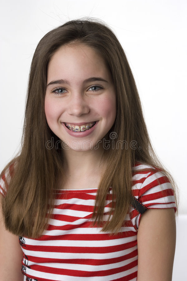Do you like my braces? royalty free stock images