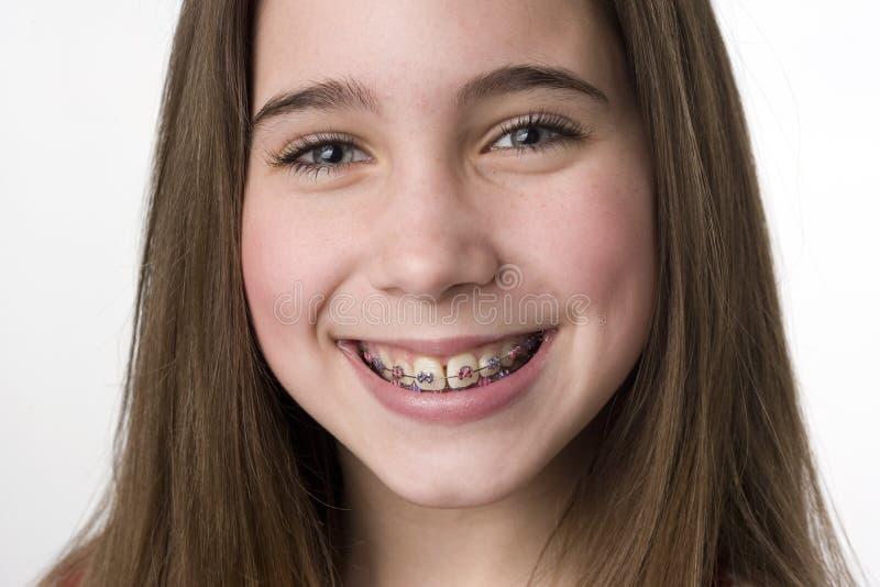 Do you like my braces? stock photos
