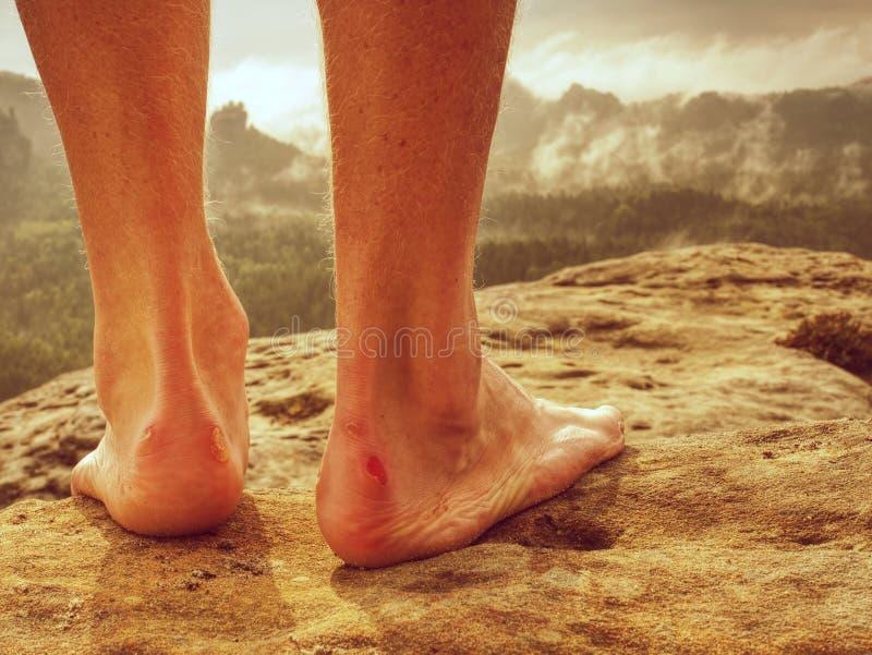 Dobiera się skaleczenie i męczyć nogi odpoczywa na wierzchołku góra obrazy stock
