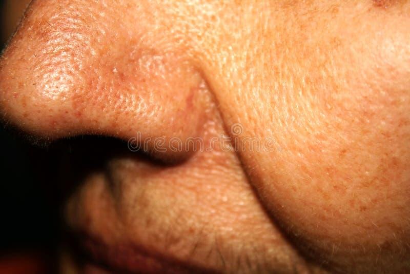 Dobra enrugada Nasolabial na pele da cara imagem de stock