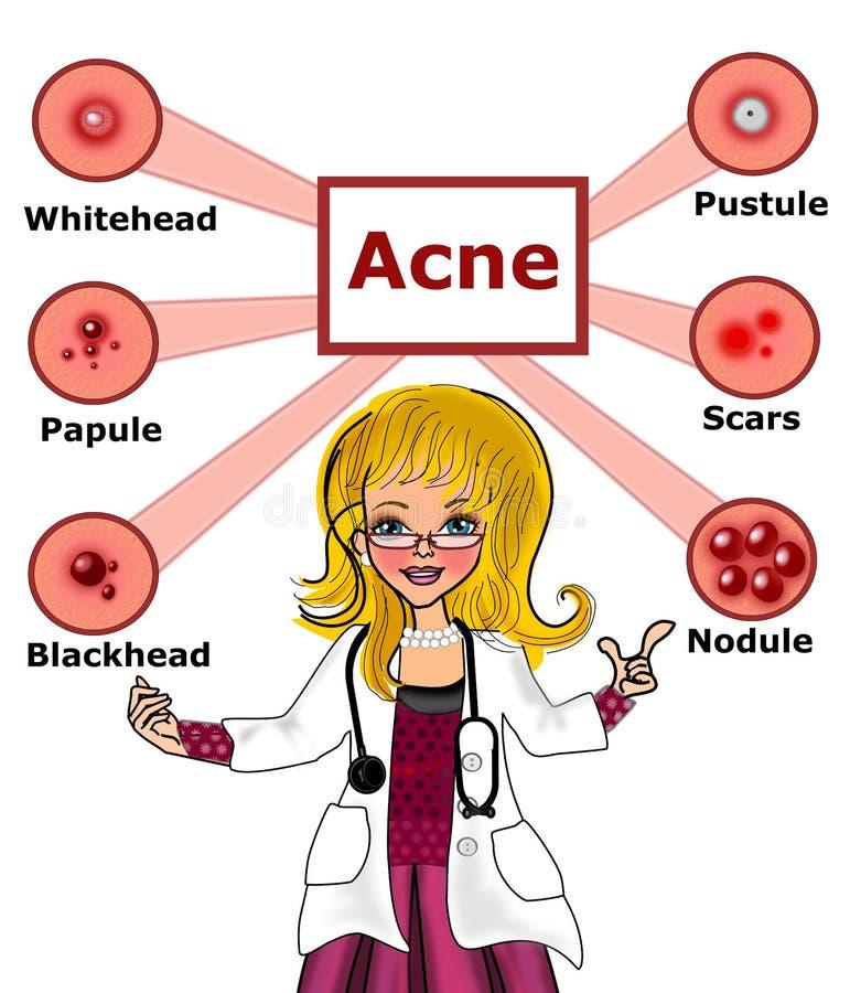 Docteur et type femelles d'acné illustration de vecteur