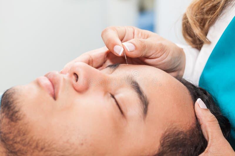 Docteur exécutant l'acuponcture faciale sur un patient masculin images stock