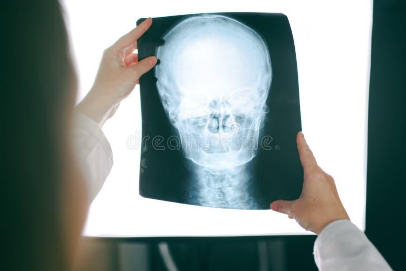 Docteur féminin regardant l'image de rayon X de la tête humaine image libre de droits