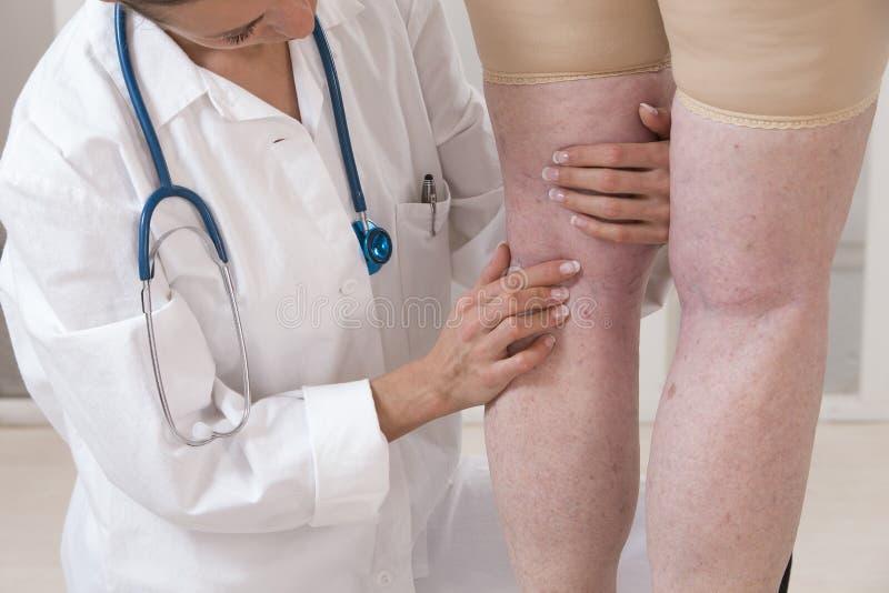Docteur montrant des veines variqueuses d'une femme agée image stock