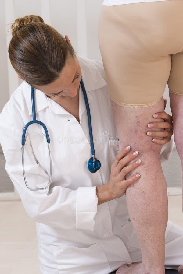 Docteur montrant des veines variqueuses d'une femme agée image libre de droits
