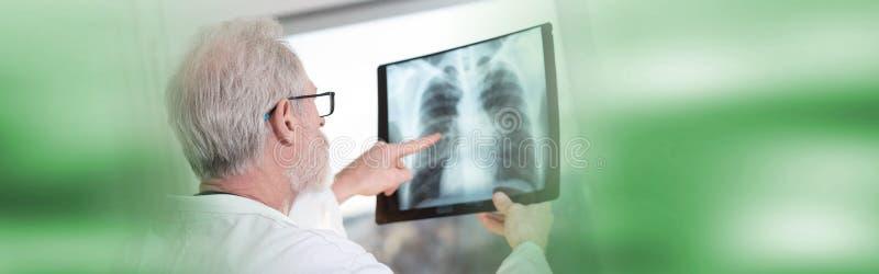 Docteur regardant le rayon X photos stock