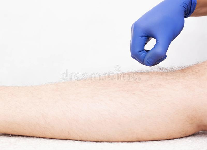 Doctor beautician holds the hair in the hand of a man on the leg, preparing for laser hair removal, white background, copy space. Cosmetologist stock image