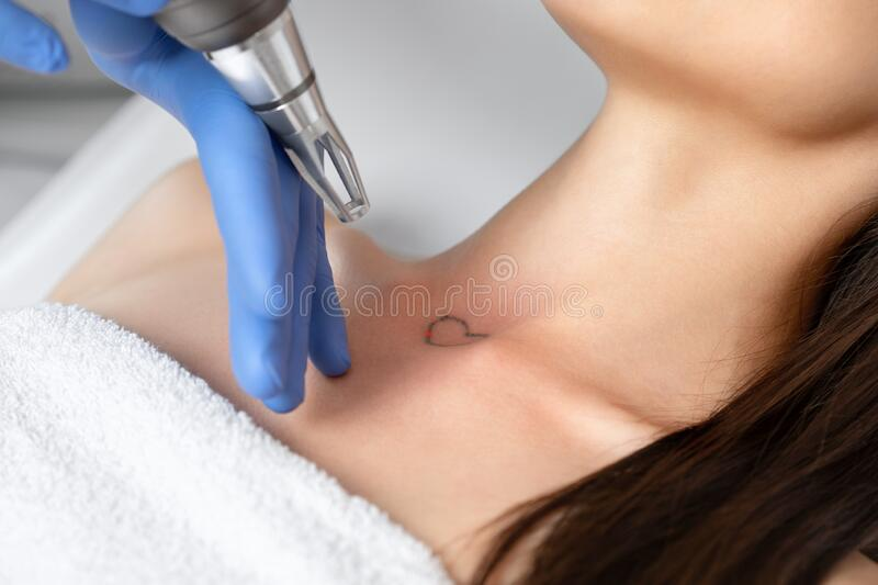 Doctor beautician makes laser tattoo removal on the neck of a young brunette woman in the salon. Aesthetic cosmetology, skin stock photos