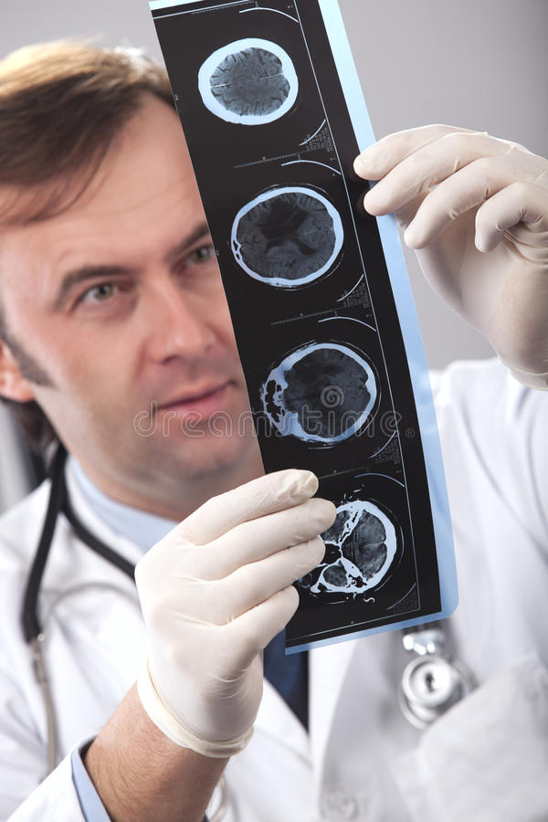 Doctor is checking x- ray stock photography
