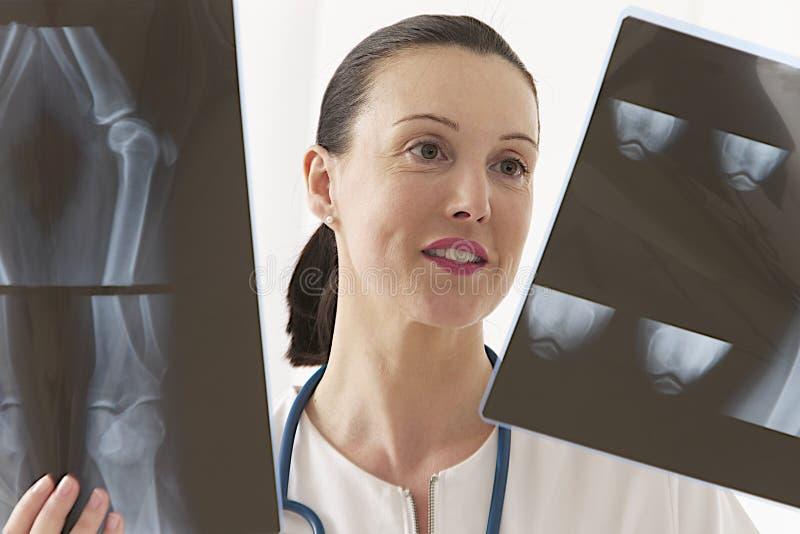 Doctor de sexo femenino que mira a la radiografía de la rodilla fotos de archivo libres de regalías