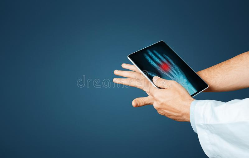 Doctor With Digital Tablet Scans Patient Arm, Modern X-Ray Technologists In Medicine And Healthcare Concept royalty free stock photos