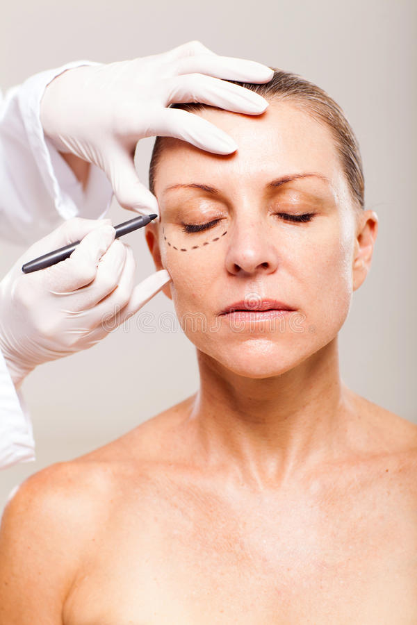 Download Senior plastic surgery stock image. Image of aged, body - 29799471
