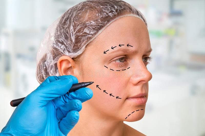 Plastic surgery doctor draw lines with marker on patient face. Doctor draw lines with marker on patient face for facial plastic surgery at clinic stock photo