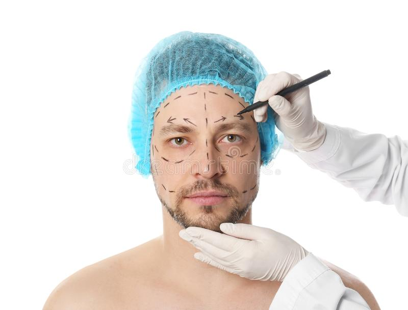 Doctor drawing marks on man`s face for cosmetic surgery operation stock photography