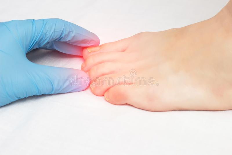 Doctor examines ingrown nail on female leg and fungus diseases, mycosis, close-up, white background, pain stock image