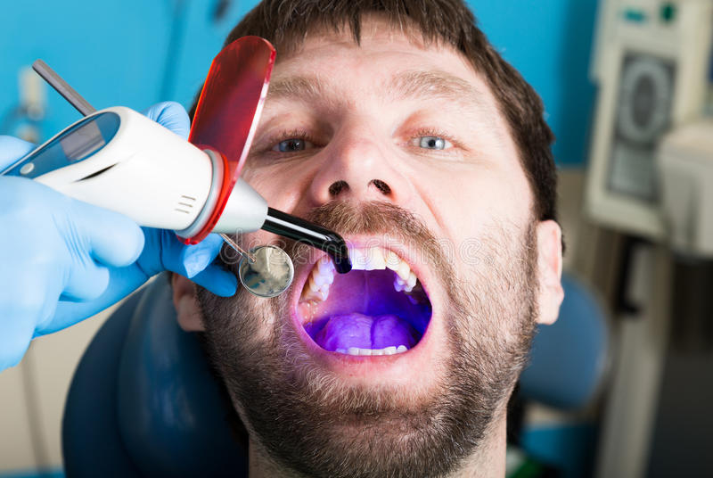 Doctor examines the oral cavity on tooth decay. Caries protection. Tooth decay treatment. Dentist working with dental royalty free stock photos