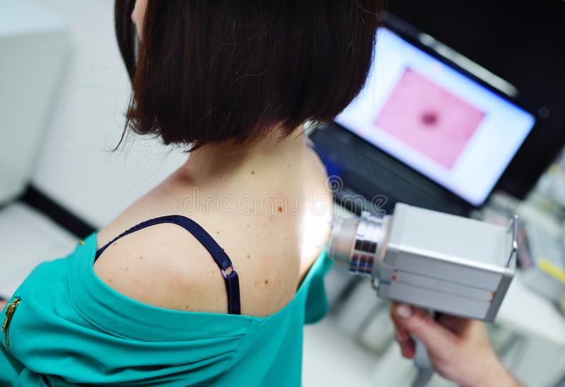 The doctor examines the patient`s moles royalty free stock photography