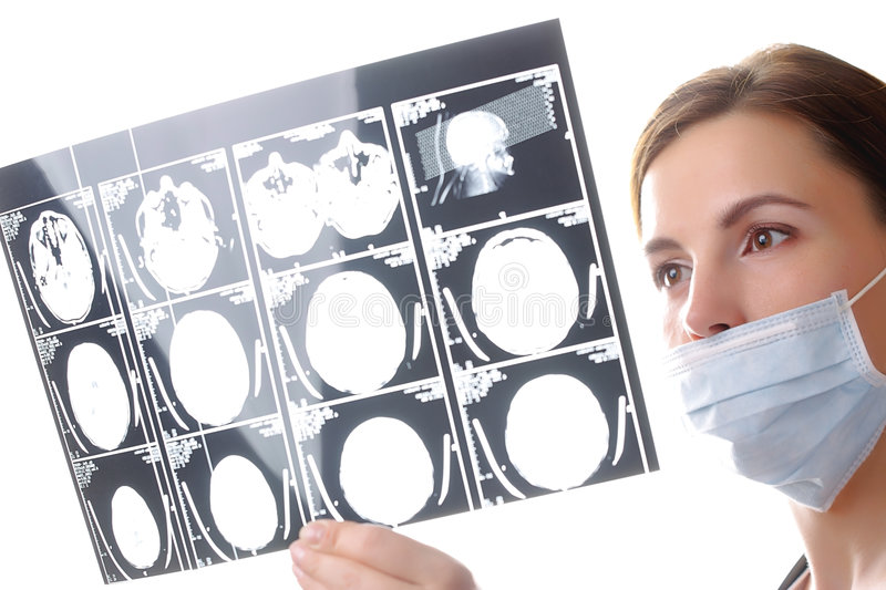 Doctor examining a brain cat scan royalty free stock photography