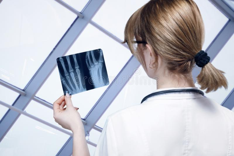 A doctor is examining a hand x-ray image for treatment and diagnosis royalty free stock photos