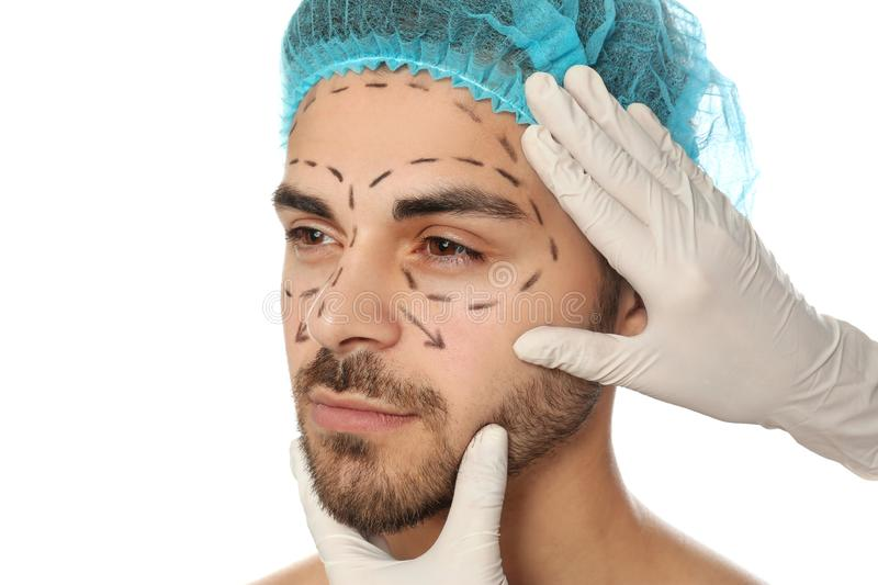 Doctor examining man`s face with marker lines for plastic surgery operation on white stock images