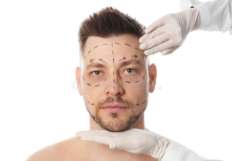 Doctor examining man`s face before plastic surgery operation on white stock images