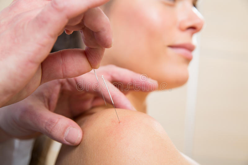 Doctor hands acupuncture needle pricking on woman royalty free stock photos