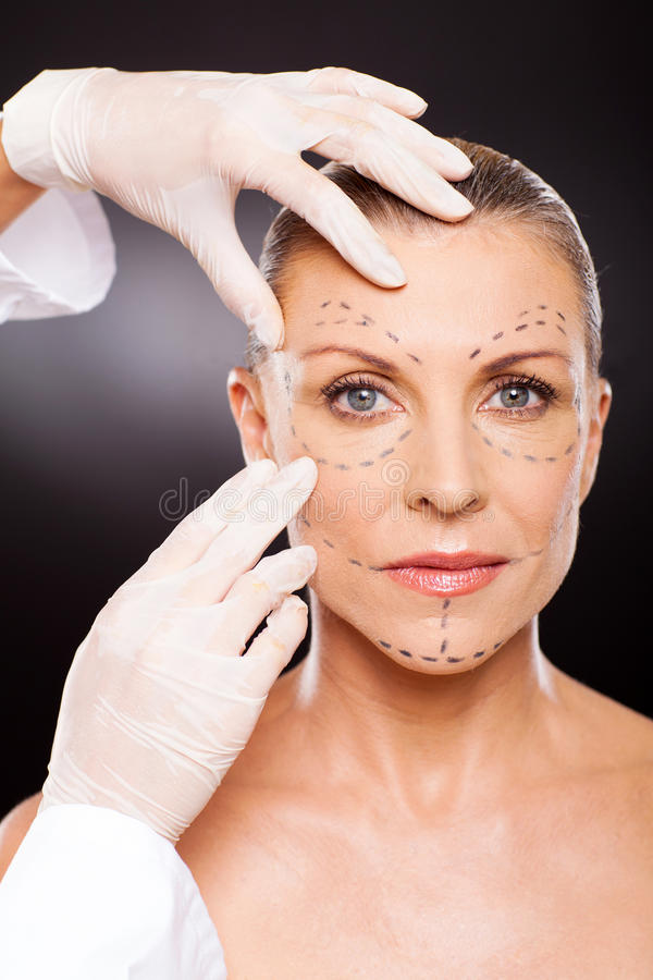 Download Middle aged face lifting stock photo. Image of beauty - 29801818